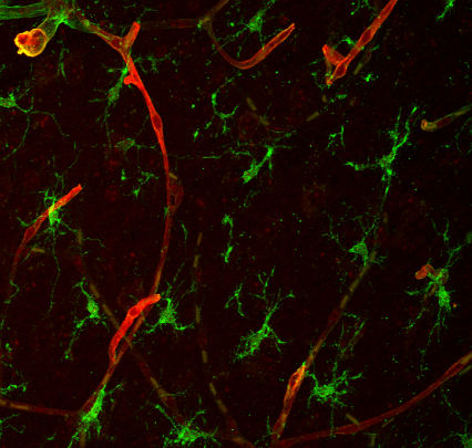 Microscopy showing brain tissue cells.