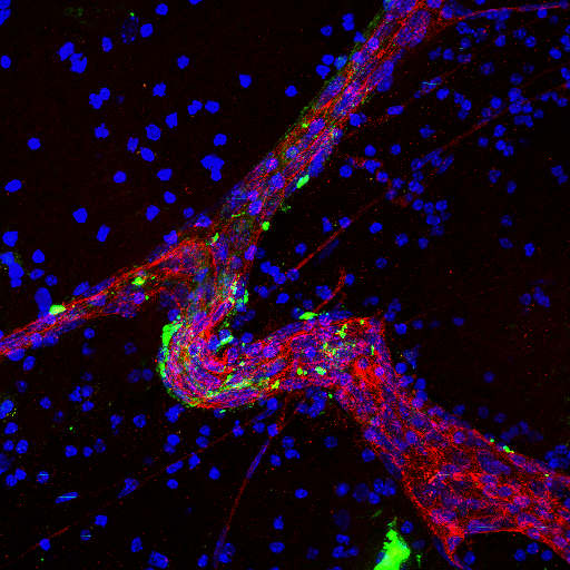 Image of a large blood vessel in brain tissue treated with brain metastatic cell-derived exosomes