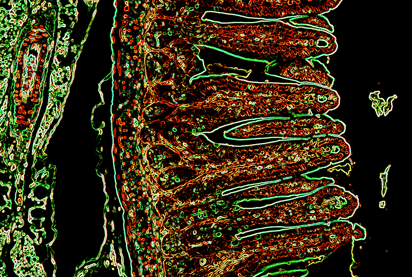 Color enhanced image of healthy small intestine